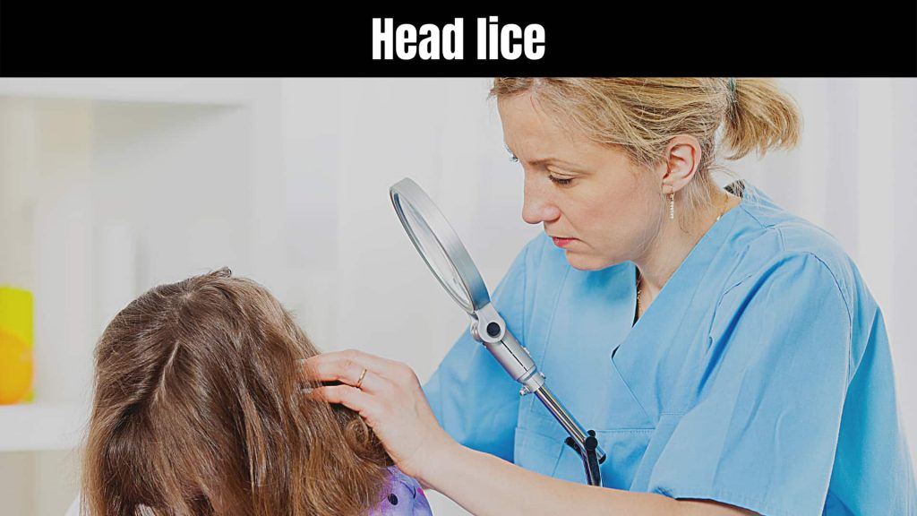 How to check yourself for lice